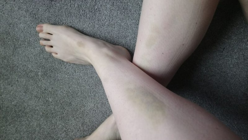 bruises from pole dancing